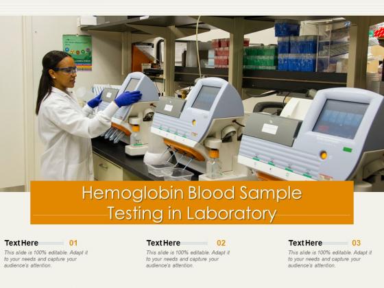 Hemoglobin Blood Sample Testing In Laboratory Ppt PowerPoint Presentation Gallery Icons PDF