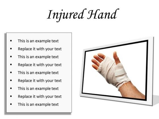 Injured Hand Medical PowerPoint Presentation Slides F