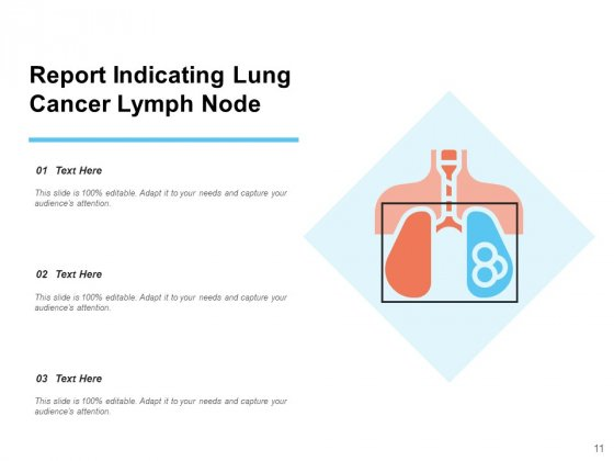 Lung_Carcinoma_Lung_Cancer_Ribbon_Ppt_PowerPoint_Presentation_Complete_Deck_Slide_11