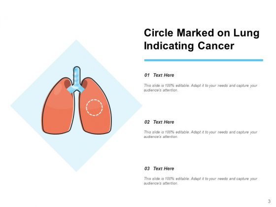 Lung_Carcinoma_Lung_Cancer_Ribbon_Ppt_PowerPoint_Presentation_Complete_Deck_Slide_3