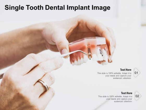 Single Tooth Dental Implant Image Ppt PowerPoint Presentation Model Outfit PDF