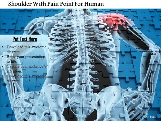 Stock Photo Shoulder With Pain Point For Human PowerPoint Slide