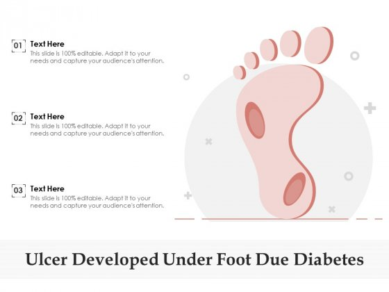 Ulcer Developed Under Foot Due Diabetes Ppt PowerPoint Presentation Pictures Objects PDF