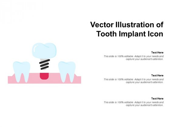 Vector Illustration Of Tooth Implant Icon Ppt PowerPoint Presentation Infographic Template Slideshow PDF
