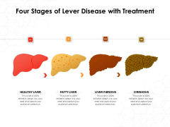 Four Stages Of Lever Disease With Treatment Ppt PowerPoint Presentation Gallery Tips PDF