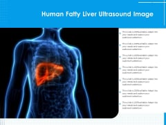 Human Fatty Liver Ultrasound Image Ppt PowerPoint Presentation File Example Topics PDF