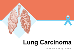 Lung Carcinoma Lung Cancer Ribbon Ppt PowerPoint Presentation Complete Deck