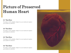 Picture Of Preserved Human Heart Ppt PowerPoint Presentation Professional Smartart PDF