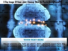 Stock Photo X Ray Image Of Knee Joint Closeup View On Puzzle Background PowerPoint Slide