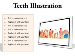 Teeth Illustration Dental PowerPoint Presentation Slides F