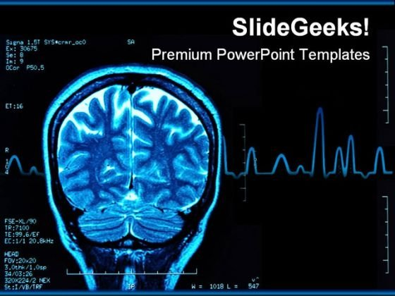 Brain Mri Medical PowerPoint Template 0610