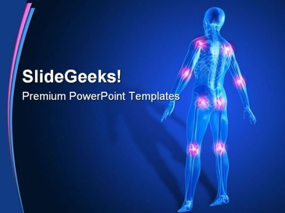 Painful Joints01 Medical PowerPoint Template 0610