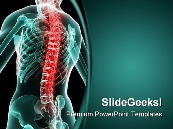 Painful Spine Medical PowerPoint Backgrounds And Templates 1210