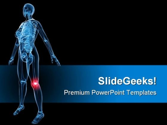X Ray Of Painful Knee Medical PowerPoint Themes And PowerPoint Slides 0811