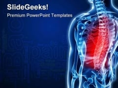 Back Pain Medical PowerPoint Templates And PowerPoint Backgrounds 0211