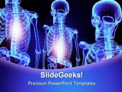 Skeleton Medical PowerPoint Template 1110
