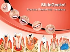 Teeth Illustration Dental PowerPoint Themes And PowerPoint Slides 0411